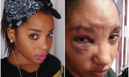 25 year old slay queen beaten beaten black and blue with a wooden cricket bat