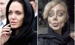 19-year-old ends up looking like a zombie after undergoing 50 surgeries in a bid to look like her idol Angelina Jolie