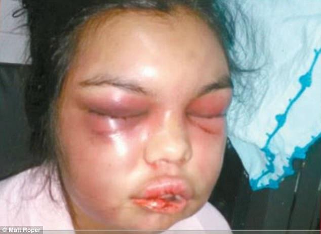 Adolfina with disfigured face. Photo/Matt Roper