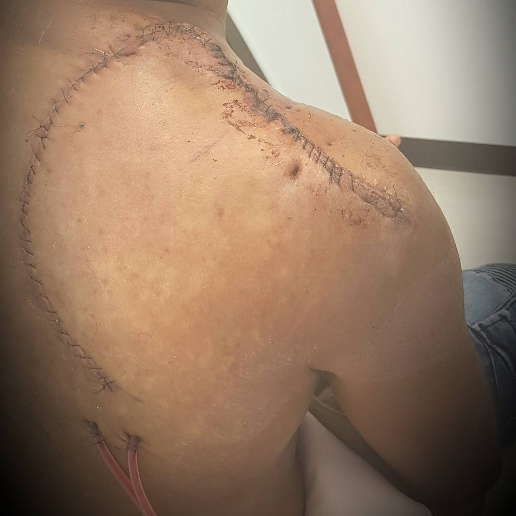 Banky W showing his scars from the surgery. photo credit: Instagram/bankywellington